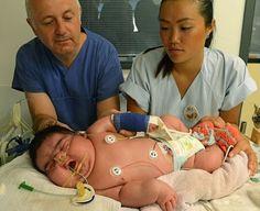 Na Austrália, mulher com 250 kg acaba de dar à luz a um rebento com 15kg e 800 gramas! Esta mulher poderá ter dado à luz o bebé maior já registado. Ninguém no hospital (de Perth Rei Edward Memoria…