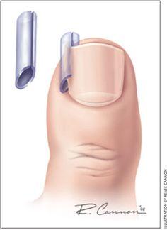 ingrown toenail treatment | Management of the Ingrown Toenail - American Family Physician