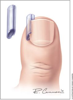 Management of the Ingrown Toenail - American Family Physician