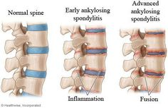 ANKYLOSING SPONDYLITIS Is A Chronic Inflammatory Systemic Disease. Repin from Tammy Morin.