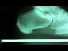 Getting rid of a nasty heel spur & plantar fasciitis, when conservative treatment fails.
