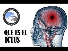 Ictus o infarto cerebral, que es y como se produce  /  Fisioterapia a tu...