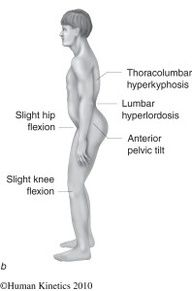 Lower Crossed Syndrome Type A vs. Type B: Whats the difference? there are types? I missed that part. Thigh Muscles, Abdominal Muscles, Sacroiliac Joint Dysfunction, Exercise Images, Lower Back Muscles, Trigger Point Therapy, Muscle Imbalance, Hip Problems, Muscle Weakness