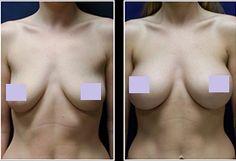 Breast Actives Result.