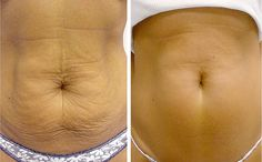 5 Methods For Tightening The Skin Around The Stomach