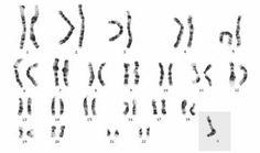 As aberrações cromossômicas numéricas incluem os casos em que há aumento ou diminuição do número do cariótipo normal da espécie humana.