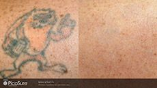 Reno Nevada Welcomes World's Most Advanced Technology for Tattoo Removal