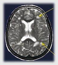 Information about white matter lesions, aka hyperintensities, and the relationship to Migraines.