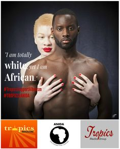"Tropics Magazine launches the ""Tropics Support Albinism"" campaign in partnership with ANIDA France Albinism, The Twenties, Campaign, Product Launch, Tropical, African, Culture, Magazine"
