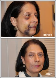 How to camouflage bruising from procedures with makeup.