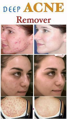 Pimple Marks, Acne Marks, Scar Removal Cream, Acne Scar Removal, Pimple Cream, Acne Cream, Cystic Acne Remedies, How To Get Rid Of Pimples, Remove Acne