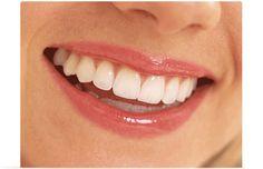 Estetik diş kaplama. Metal içermeyen zirkonyum diş kaplama fiyatlarını öğrenin.