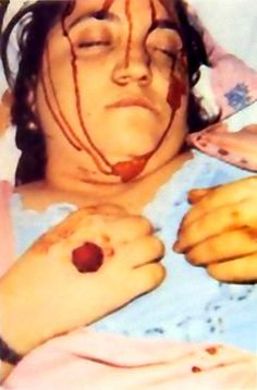 Musco Teresa stimmate - morta