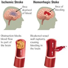 Stroke : Symptoms, Pathophysiology, Diagnosis, And Treatment - Health, Medicine and Anatomy Reference Pictures
