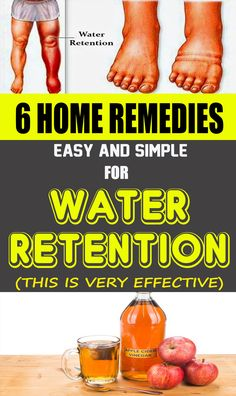 6 Simple and Effective Home Remedies For Water Retention - body care for me Homemade Pimple Remedies, Herbal Remedies, Health Remedies, Home Remedies, Natural Remedies, Diarrhea Remedies, Bloating Remedies, Psoriasis Remedies, Arthritis Remedies