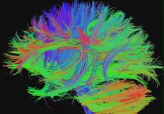 Classical neurology defines consciousness as the ongoing process of arousal and awareness.