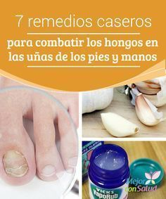 7 Nail Fungus Home Remedies Nail fungus can be uncomfortable and unsightly. Mostly prevalent on toes, here are seven nail fungus home remedies to improve health and comfort. Listerine, Health Remedies, Home Remedies, Toenail Fungus Remedies, Fungal Nail Infection, Vicks Vaporub, Nail Treatment, Natural Treatments, Natural Remedies
