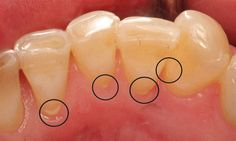 Tartar, also known as calculus, is a deposit that forms when plaque hardens on the tooth. Individuals vary greatly in their susceptibility to tartar buildup. For many, these deposits build up faster with age. Tartar is easily noticeable because of its yellow or brown color on teeth. Plaque is a sticky, colorless deposit of bacteria that is constantly forming on the tooth surface. Saliva, food and fluids combine to produce these deposits that collect where the teeth and gums meet.