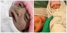 Αυτό το κοριτσάκι έζησε μόνο 74 λεπτά – Πριν κλείσει όμως τα μάτια του έκανε κάτι που θα την στείλει στον παράδεισο