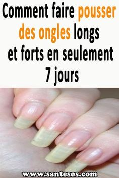 How to grow long and strong nails in just 7 days Nagel Art, How To Grow Nails, Strong Nails, Amy, Hand Care, Nail Technician, Natural Nails, Toe Nails, You Nailed It