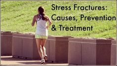 Great read regarding stress fractures! Runners and Stress Fractures