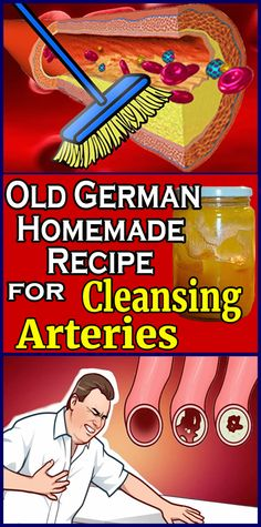 Watch This Video Captivating Clear Blocked Arteries with Natural Health Remedies Ideas. Splendid Clear Blocked Arteries with Natural Health Remedies Ideas. Health And Beauty, Health And Wellness, Health Fitness, Fitness Workouts, Natural Health Remedies, Heart Health, Natural Medicine, Natural Healing, Hacks