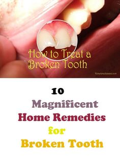 Remedies For Teeth Whitening Home Remedies Care — 10 Magnificent Home Remedies for Broken Tooth - Fix Teeth, Teeth Care, Skin Care, Teeth Whitening Remedies, Natural Teeth Whitening, Chipped Tooth Repair, Cracked Tooth, Veneers Teeth, Dental Fillings