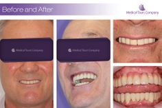 Implants and crowns Teeth In A Day, Dental Crowns, Medical, Lipstick, Tours, Dental Implants, Medical Doctor, Medicine, Lipsticks