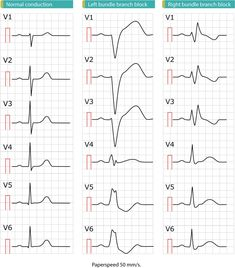 Learn about left bundle branch block (LBBB), with emphasis on ECG criteria, differential diagnoses, causes, management and diagnosis of ischemia/infarction. Bundle Branch Block, Ekg Interpretation, Cardiac Rhythms, Cardiac Nursing, Nursing School Notes, Medical Anatomy, Emergency Medicine, Heart Block Poem, Cardio