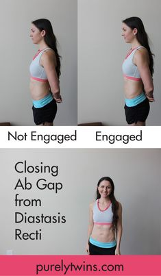 How to close your diastasis recti. What post partum mom's stomach looks with core engaged and what it looks like not engaged. What real life post partum belly looks like after months of working on closing ab gap to get rid of mummy tummy.
