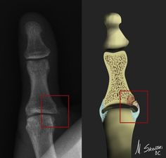 Skier's/Gamekeepers thumb. Read more here: http://radiopaedia.org/articles/skiers-thumb-classification