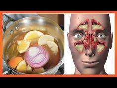 ⭐️❤️Esta é a bomba contra a congestão nasal e a gripe vai curar você em 24 horas! - YouTube