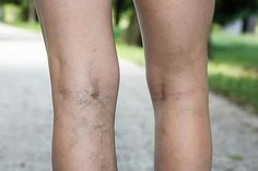 Spider veins can lead to varicose veins and serious health problems. The pain management doctors at the Lakeland Vein Clinic have effective treatments. Spider Vein Treatment, Varicose Veins Treatment, Spa Treatments, Natural Treatments, Vascular Ultrasound, Vein Removal, Spine Pain, Medical Spa, Human Body