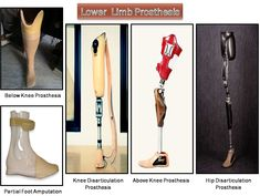 Creative Orthotic & Prosthetic Solutions - Manufacturer of Artificial Limbs & Polio Calipers, KAFO,HKAFO from Secunderabad Milwaukee Brace, Scoliosis Brace, Orthotics And Prosthetics, Prosthetic Leg, Orthopedic Shoes, Knee Brace, Feet Care, Get Directions, Braces