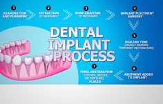 Enjoy better, stronger teeth replacements by getting dental implants in Sterling Heights, MI. Call for an appointment at Laser Dental Associates. Bone Grafting, Affordable Dental Implants, Dentist Day, Implant Dentistry, Cosmetic Dentistry, Tooth Replacement, Stronger Teeth, Dental Cosmetics, Dental Bridge