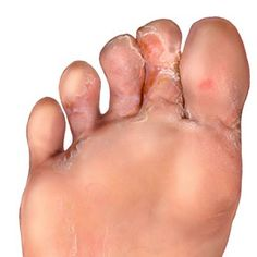 Toenail Fungus Remedies Home Remedies For Foot Fungus - Natural Treatments Foot Remedies, Herbal Remedies, Health Remedies, Natural Home Remedies, Natural Healing, Holistic Healing, Natural Skin, Infection Fongique, Foot Fungus Treatment