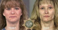 10 Examples of What Drugs Can Do To A Person's Appearance!