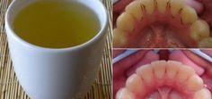 Studie: Dieser natürliche Tee entfernt Plaque besser als jedes kommerzielle Mundwasser