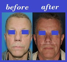 #1 Plastic Surgery In Thailand: Mid-Facelift Surgery Photos