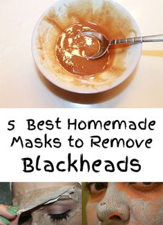 Natural Remove Blackheads 5 Best Homemade Masks to Remove Blackheads - Incredible!Remove instant the blackheads. Because nature always offered us the best remedies, today I will present you 5 Homemade Masks to Remove Blackheads Blackhead Remedies, Blackhead Mask, Acne Remedies, Natural Remedies, Blackhead Remover Homemade, Health Remedies, Homemade Face Masks, Homemade Skin Care, Homemade Beauty