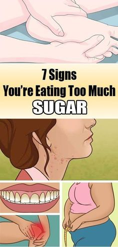 7 Signs You Are Eating Too Much Sugar