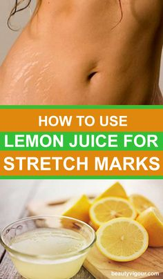 4 Best Ways To Use Lemon Juice For Stretch Marks