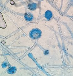 Aspergillus flavus conidial heads at various stages of development.