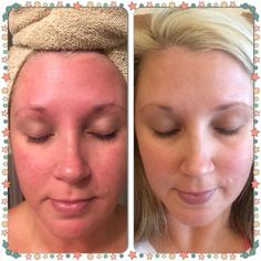 Rodan + Fields! Skincare with amazing results! Start yours today!