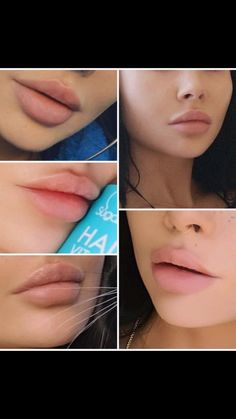 Hautpflege lip color guide In addition to the size of a kitchen sink, it is also importan Botox Fillers, Dermal Fillers, Lip Fillers, Lip Injections Juvederm, Botox Lips, Lip Augmentation, Lip Shapes, Perfect Lips, Beautiful Lips