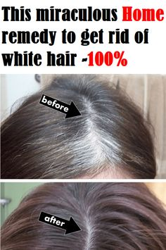 This miraculous Home remedy to get rid of white hair -100%