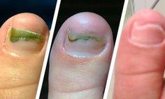 Son más frecuentes en los dedos de los pies, pero también pueden aparecer en las manos. Más allá de ser antiestéticos y de no quedar bien, es preciso tratarlos para gozar de una buena salud. Si tienes las uñas amarillentas, verdes o marrones, no dudes en echar un vistazo a estos remedios caseros para hongos. …