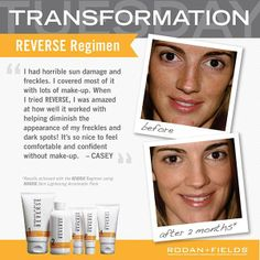 Makeup free you say? Have you experienced a skincare transformation? Inspire us with the story of your skincare success by sharing how you are facing the future, looking better tomorrow than you did yesterday.   Visit http://karendrinkard.myrandf.com/ for details, then ask me how you can receive a complimentary regimen of your choice. Comment below and share a written sound bite about the results you're seeing from using your Rodan + Fields® regimen.