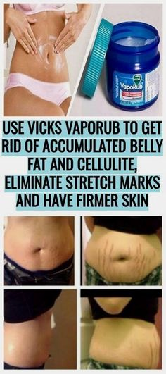 Health Blog, Health Advice, Health Care, Health Diet, Health Articles, Congested Nose, Uses For Vicks, Vicks Vaporub Uses, Lose Weight
