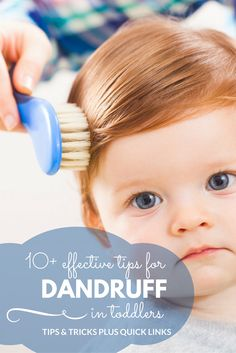 10+ actionable tips to tackle dandruff in toddlers!